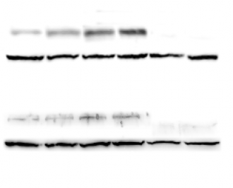 Western Blot Protocol (Cell Lysate) and Making a Running Gel